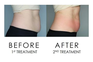 Cryoskin Slimming Before and After