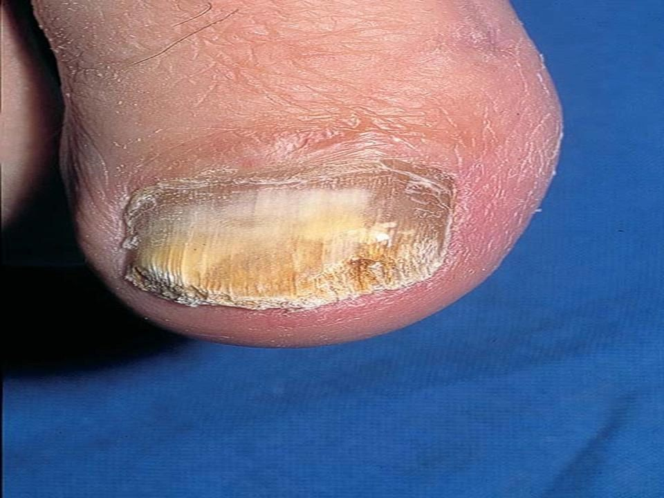 Common Fungal Nail Infection