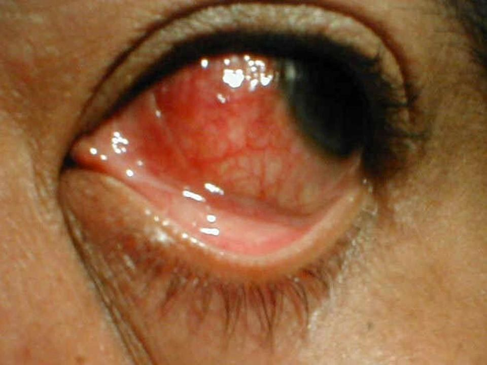 Ocular Fungal Infection