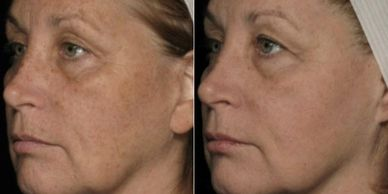 The first in a new class of photodynamic cosmetic (PDC) procedures, Allumera® is a non-invasive, lig