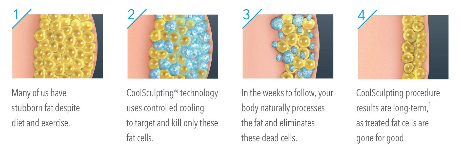 Visual diagram showing how the Coolsculpting procedure targets fat cells.