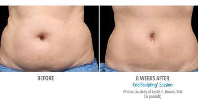 Coolsculpting results 8 weeks after procedure.