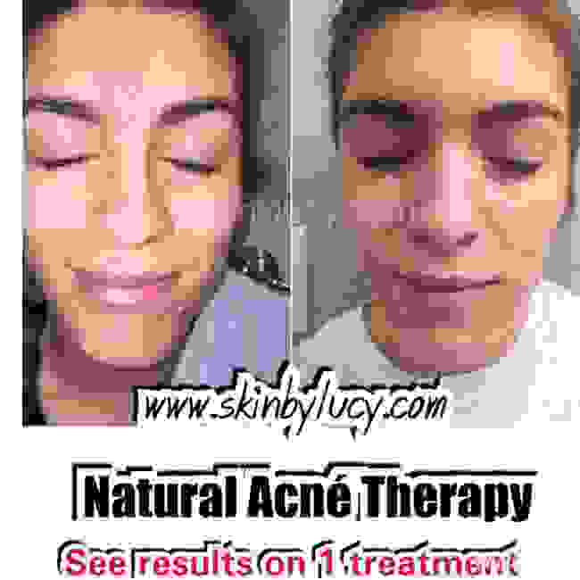Avoid skin scarring, reduce oily skin. Chemical Peels Best acne treatments