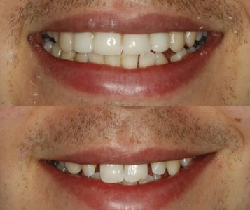 Cosmetic Bonding results from client Cambridge Dentist