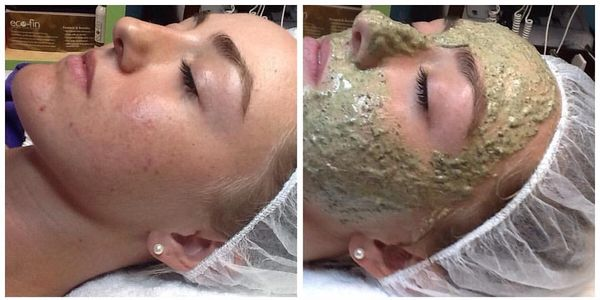 before and after of Green Peel