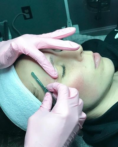 Dermaplaning at Ariya Aesthetics