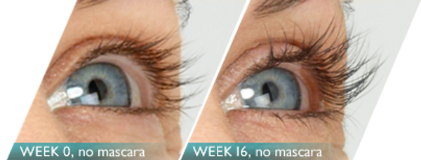 Latisse®, an FDA-approved treatment to encourage natural lash growth.