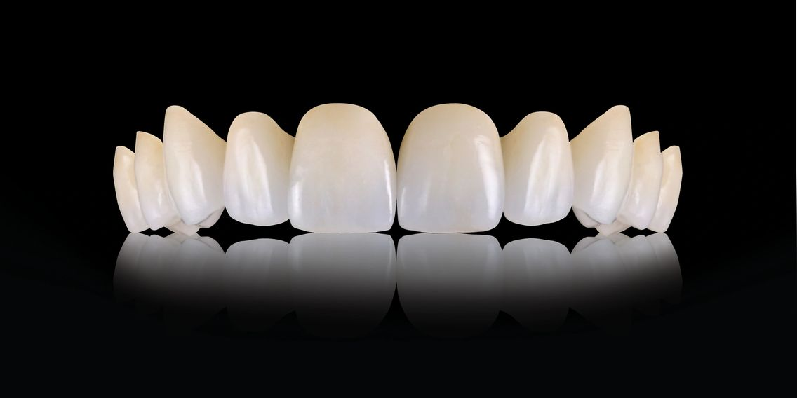 Dental Crowns IPS e.max
