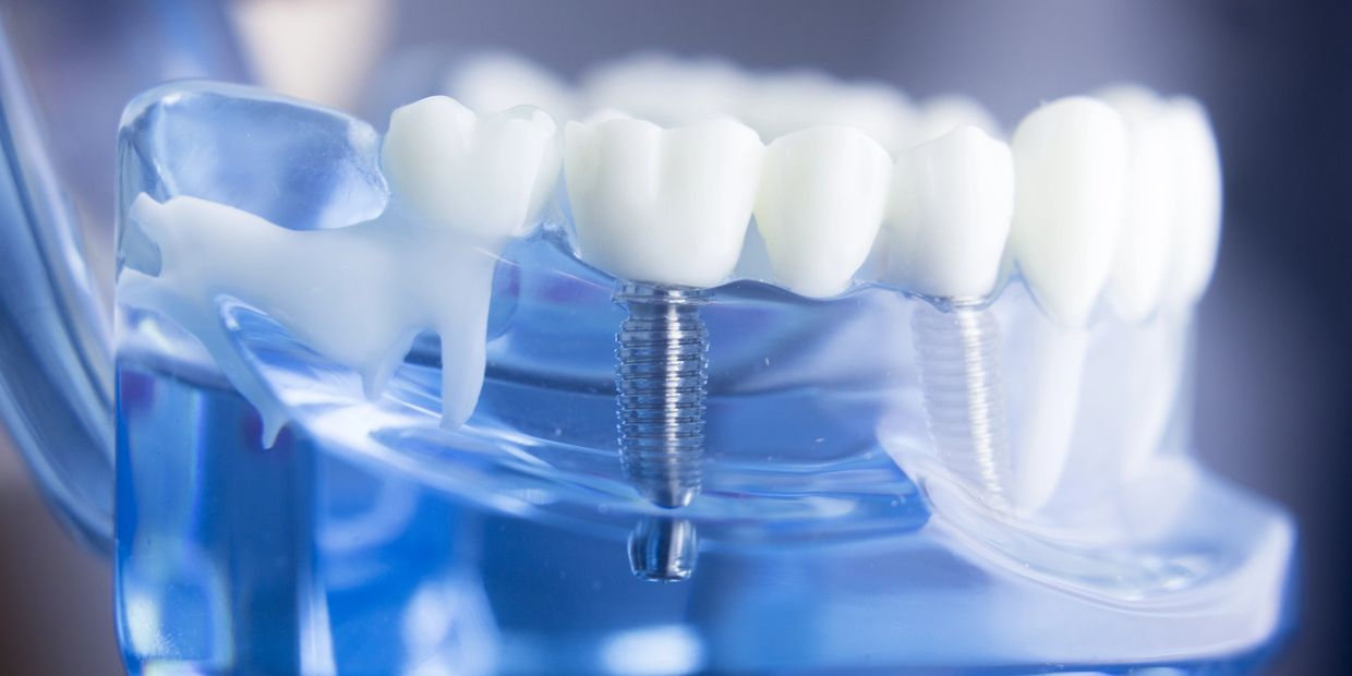 Dental Implants at Simply Dentistry