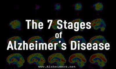 Stages of Alzheimer's Disease or Dementia