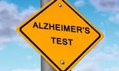 Am I at risk of getting Alzheimer's Dementia? Take test Alzheimer's Dementia Dr. Vincent Fortanasce
