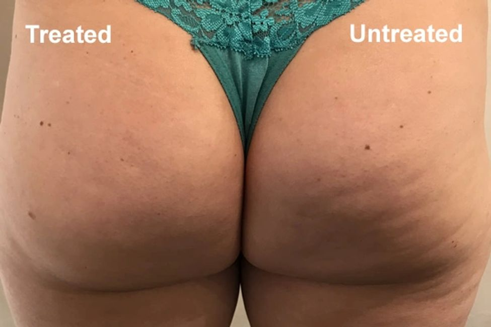 Ultrasonic Cavitation Near Me - Ultrasonic Cavitation Edmond - Ultrasonic Cavitation OKC - Cellulite