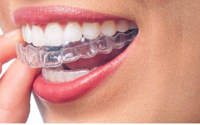 Clear Orthodontic Retainers