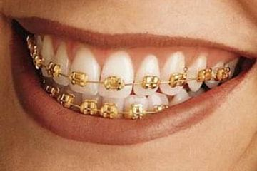 Gold Orthodontic Braces