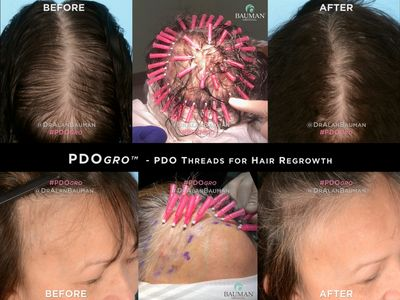 PDOgro PDO polydioxanone Threads for Hair Regrowth. Before and after results.