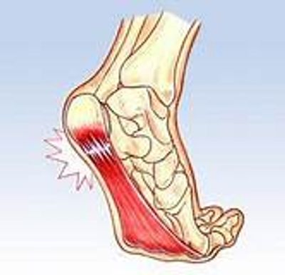 Plantar Fasciitis, heal pain, stabbing foot pain, hurts to walk. Call or text now 480-738-9261!