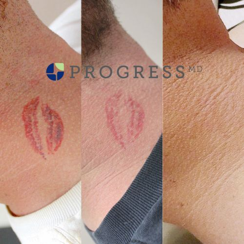 Laser Tattoo Removal Progress Md