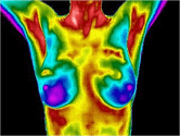 Breast thermography specialist