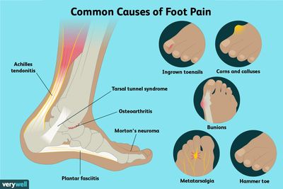 Common foot conditions including plantar fasciitis, heel and arch pain, bunions and hammer toes.