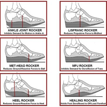 Rocker soles are added to your shoes to further offload painful parts of your feet.
