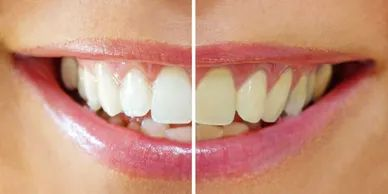 Professional strength whitening for $149 - save an average of $200 in the Chesterfield area