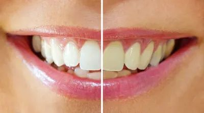 Dr. Jack Wolf offers an affordable professional strength teeth whitening system for dramatic results