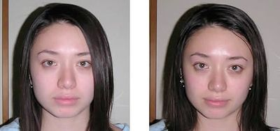 Before and after Bellanina (Belavi) Facelift Massage