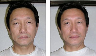 Before and After Qigong Beauty Rejuvenation Energy Facelift
