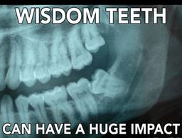 Wisdom Teeth Extraction, Painless Wisdom Teeth, Tooth Pull, Wisdom Tooth, Impacted Wisdom Teeth, dds