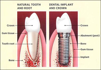 Dental Implant, Dental Implants, Dental Implant Specialist, Affordable Dental Implants, LADD Dental