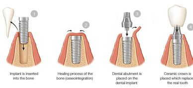 Dental Implants, dental implant specialist, affordable dental implants, quality dental implants, dds