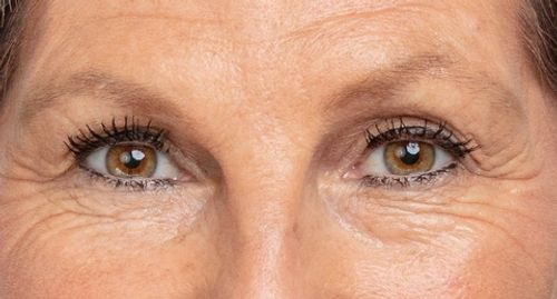 wrinkles, crow's feet, under eye bags, remove under eye bags, before photo, look younger in minutes
