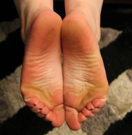 The scrunched toes and wrinkled soles of Lilix Lynette from Amarillo.