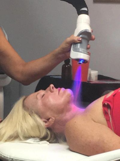 DROP SKIN TEMPERATURES TO FREEZING STIMULATES COLLAGEN GROWTH