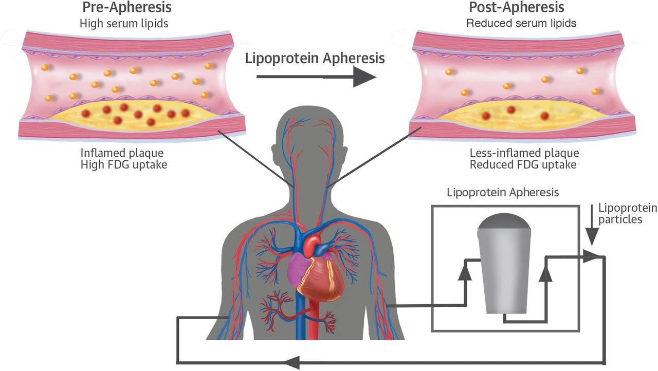 Lipoprotein(a) Apheresis  Lipid apheresis can significantly reduce lipoprotein(a) levels compared with available drug therapies, according to a presentation at National Lipid Association Scientific Sessions.