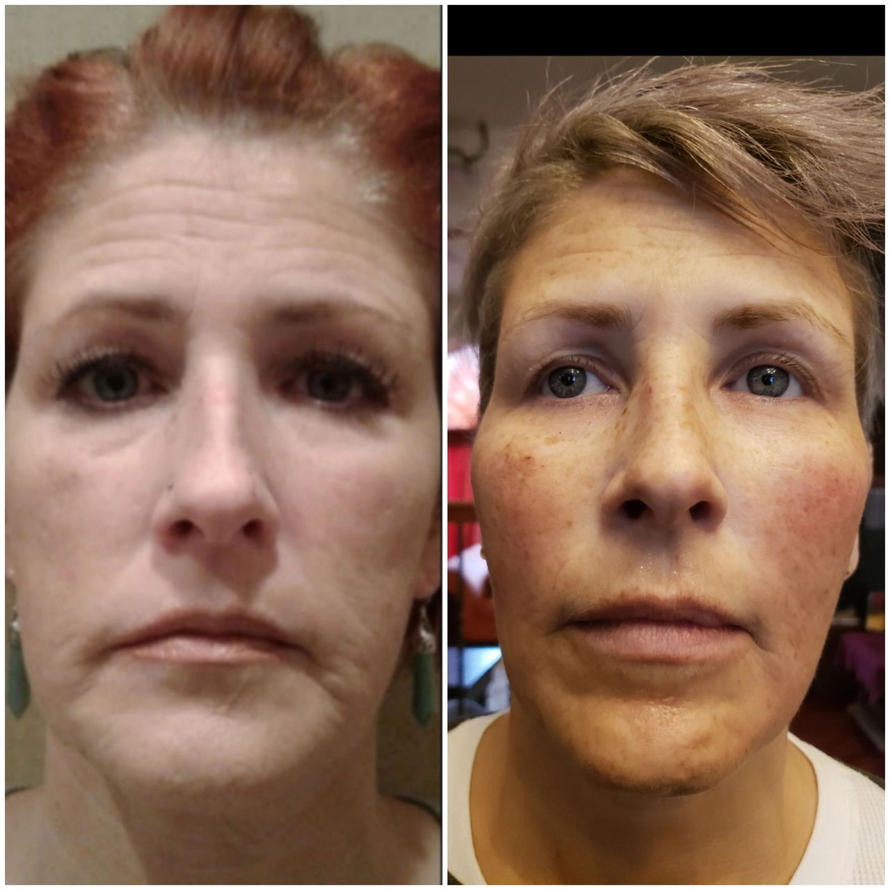 The Aging Face & What can do to improve our appearance? 5 steps to facial rejuvenation