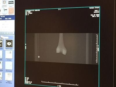 CT scan of Femur made with FibreTuff