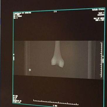 FibreTuff medical grade filament has radiopacity like bone.