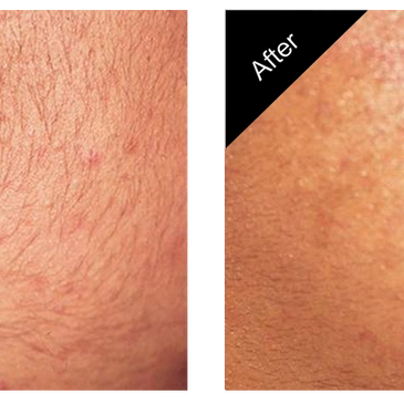 Permanent Hair removal starts at $60 a treatment. No more shaving, waxing or plucking!