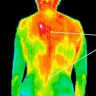 Thermal Image of Back