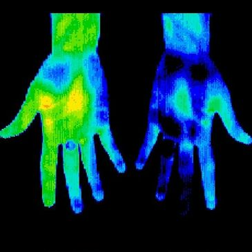 Thermal Image of Hands