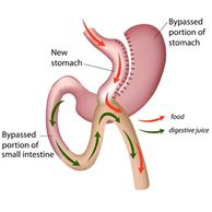 mini gastric bypass image