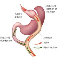 Gastric bypass image