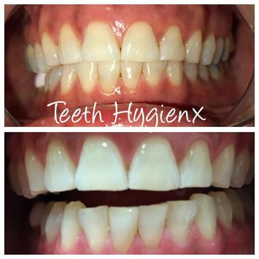 Teeth Whitening done in Logan City and surrounding Suburbs.  Improve your shade by 7-10 shades.