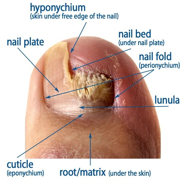Lunula Laser an Invaluable Tool to Repair and Restore Damaged Nail ...