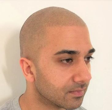 SMP by Tom May @ INKonHair Clinic Bristol & Harley Street London 4004