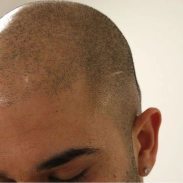 Scalp Micropigmentation by Tom May @ INKonHair Clinic Bristol & Harley Street London 4003