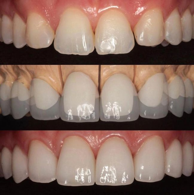 Layered Zirconium Restorations Much more Durable than Porcelain Veneers