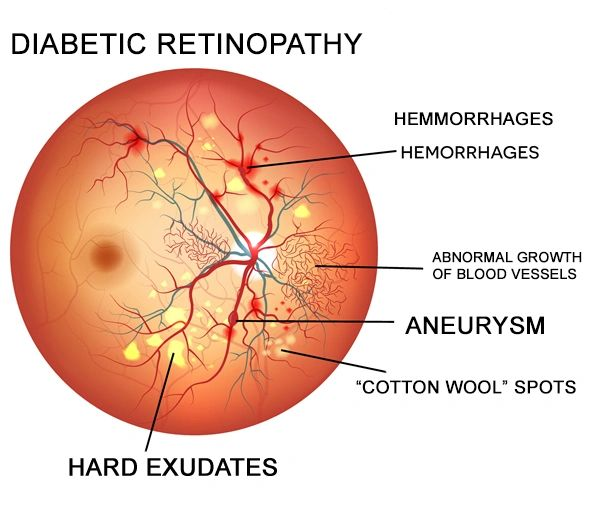4a174ae873e Blood vessels damaged from diabetic retinopathy can cause vision loss in  two ways Fragile