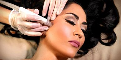 Microdermabrasion in altamonte springs, med spa near me, botox altamonte springs, beautiful brunette microdermabrasion